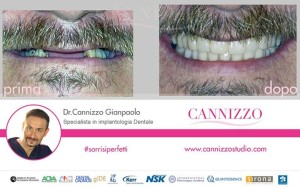 caso clinico implantologia dentale