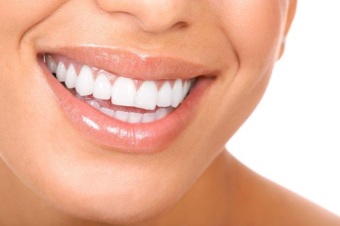 Denti larghi rimedi, faccette estetiche ?