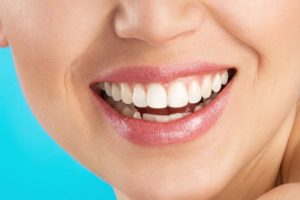 impianti dentali DrDent
