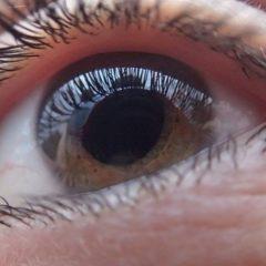 Cos'è la cornea e quando è necessario il trapianto